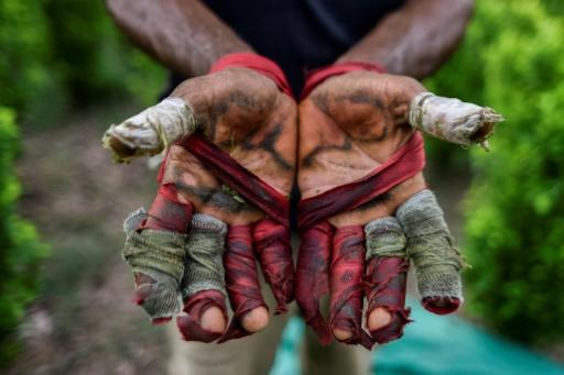 Working as a coca leaf picker is painful labor and leaves the worker's hands blistered, bloody and shredded