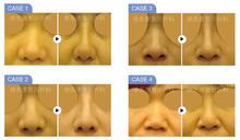 打造自然立體五官不是夢 精緻美鼻打造出個人的北鼻魅力