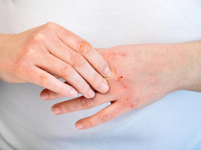 我想消毒「手部」該選什麼產品?