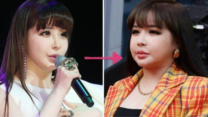 Wajah Park Bom Eks 2NE1 Berubah, Agensi Bantah Operasi Plastik