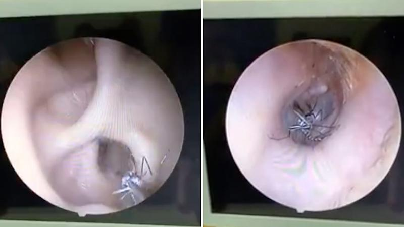 Stills from a vide showing the inside of a woman's ear as a doctor removed a mosquito in Vietnam.