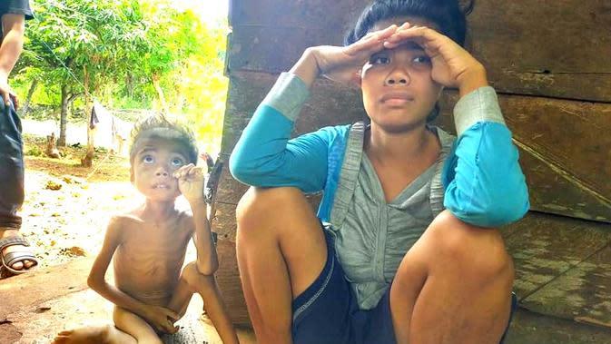 La Rungge, bersama ibunya yang mengalami gangguan jiwa.(Liputan6.com/Ahmad Akbar Fua)