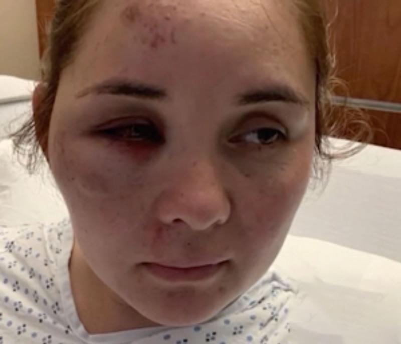 Photo of Ms Ruiz who was knocked unconscious in the alleged attack.