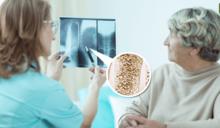 65 歲以上女性有四分之一骨質疏鬆!醫師:停經前 10 年要開始做骨密度檢查