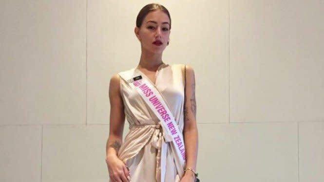 Finalis Miss Universe Selandia Baru Meninggal di Usia 23 Tahun
