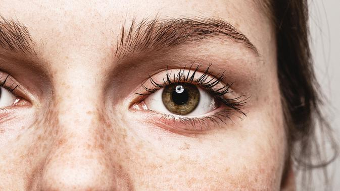 Resep Alami Mengatasi Flek Hitam (Irina Bg/Shutterstock)