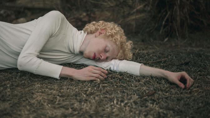Anak Terlahir Albino, Apa Penyebabnya?