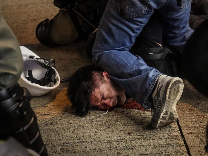 示威者門牙遭打斷 滿臉血求饒警不停手