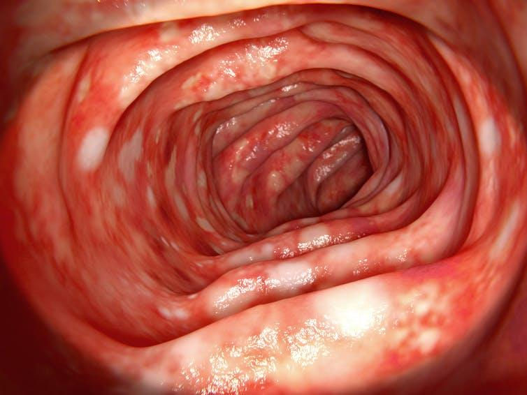 Colon affected by ulcerative colitis