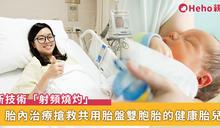 雙胞胎共用胎盤易有併發症?長庚應用「射頻燒灼」技術進行胎內治療