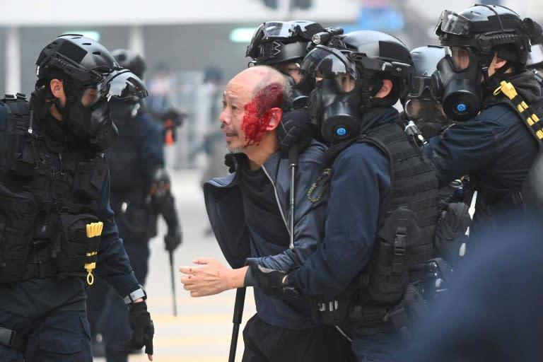 Police detain an injured man at Chater Garden in Hong Kong