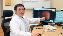 嘉義長庚:注射生物製劑 可控制潰瘍性大腸炎 (圖)