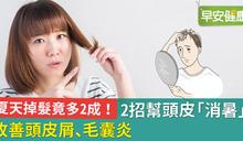 天熱頭髮掉更多?20%會變嚴重!快用2招幫頭皮「消消暑」