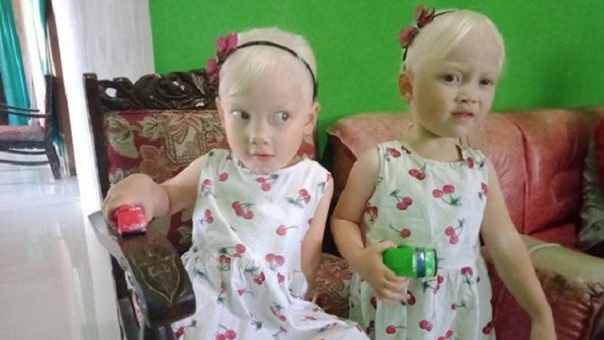 Viral Anak Kembar Bule Asli Wonogiri, Orangtua Suka Dikira Pembantu