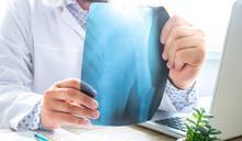 確診骨質疏鬆症別害怕! 檢查、看診時,一定要個別問這5個問題