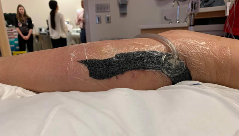 Pictured is Kylei Brown's leg following surgery to help remove the flesh eating infection.