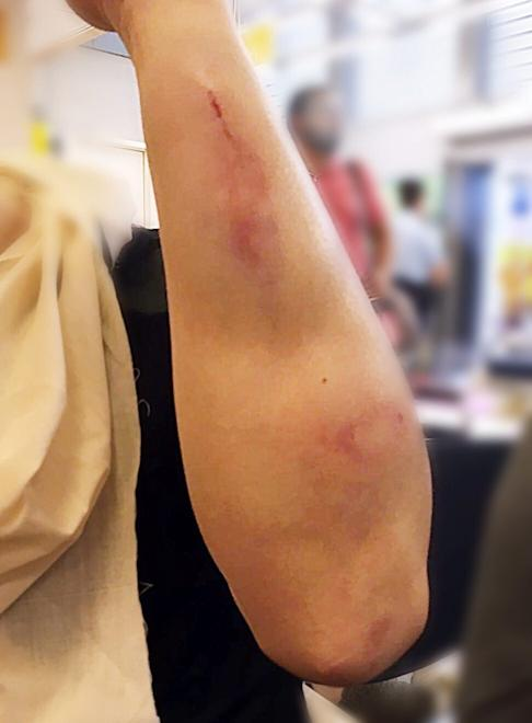Law shows an injury sustained in the attack. Photo: Photo: Jimmy Sham