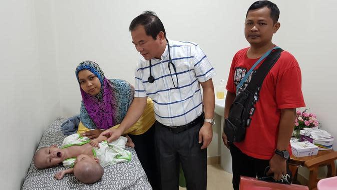 Kisah Pilu Bayi Kembar Siam Rahman-Rahim di Bekasi Idap Kelainan Jantung