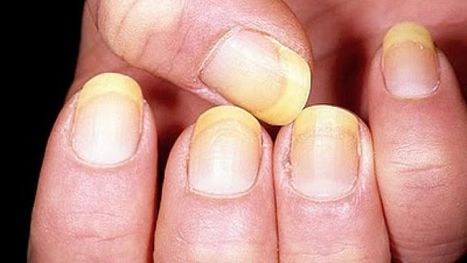 Kuku berwarna kuning. (Via: salud.facilisimo.com)