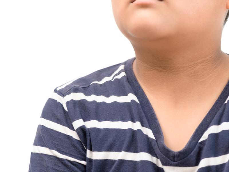 脖子黑黑整條洗不掉 小心是糖尿病徵兆