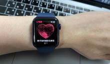 Apple Watch ECG 在台才剛開通,就替病患抓到心房顫動