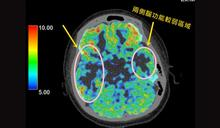 幼童流感重症裝葉克膜救命 意外找出頑固型癲癇病因