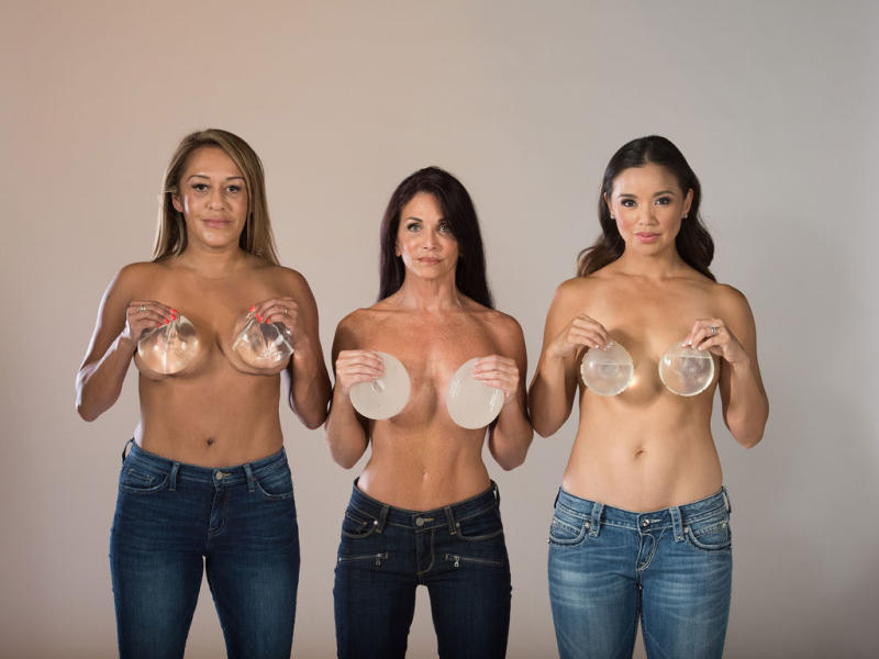 Kang organized a photo shoot with other women who also opted to explant, years after choosing to have breast implants. (Photo: Beth Baugher)