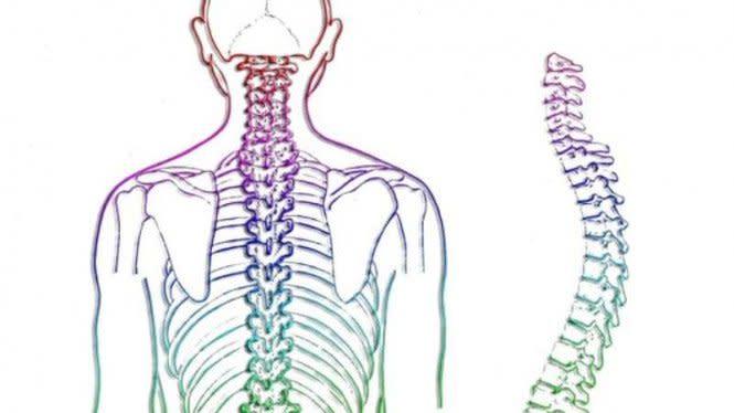 Mengenal Skoliosis, Kelainan Tulang Belakang yang Diidap Jessica Mila