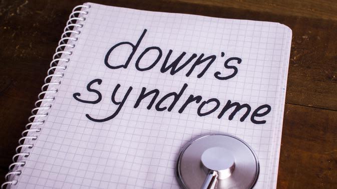 Bangun Nilai Inklusif di Dunia Fesyen, Bocah Down Syndrome Digaet Jadi Model