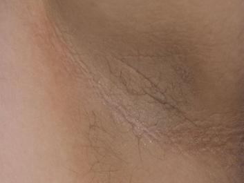 什麼是黑色棘皮症?