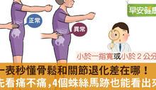 一表秒懂是骨鬆還是關節有退化?先看痛不痛,還有4個蛛絲馬跡能分辨