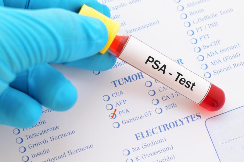 Blood sample for PSA test, diagnosis for prostate cancer