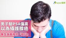 男子驗PSA偏高以為攝護腺癌 醫生說明真相他「臉紅」