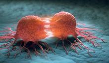 癌細胞數目不到3.5億,影像學通常看不到!名醫揭這「關鍵」檢查一定要做