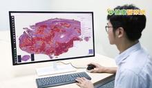 AI輔助判讀肺癌數位病理影像新突破 北醫大團隊研究登國際知名期刊