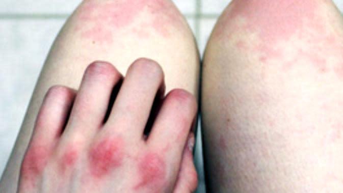 Penyakit campak umumnya mengintai bayi atau anak-anak, namun ternyata masih bisa menyerang orang dewasa.