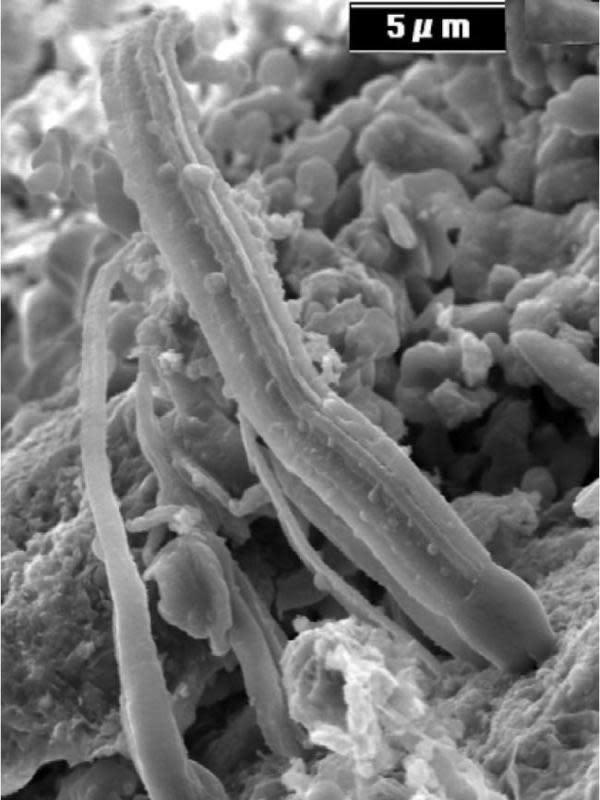 Mikroba di Meteorit. (Hoover/Journal of Cosmology)