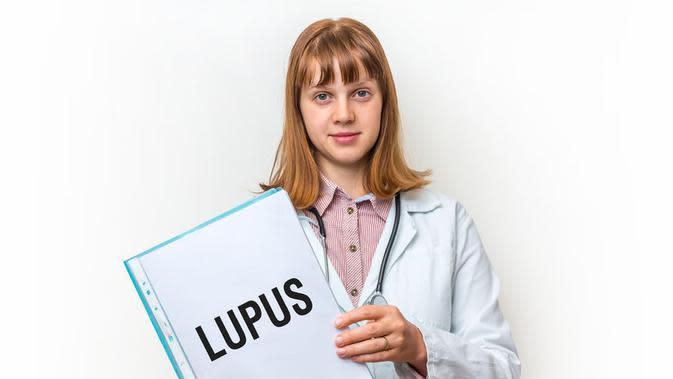 Lupus, Penyakit yang Selalu Mengintai Wanita