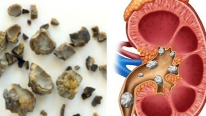 5 Kebiasaan agar Terhindar dari Penyakit Batu Ginjal