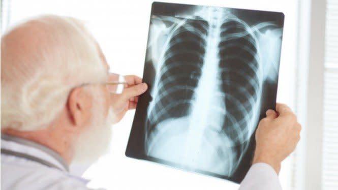 Operasi untuk Hancurkan Batu Tanduk Rusa Ginjal Kini Tanpa X-ray