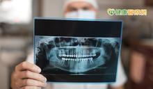 牙科拍攝X光輻射曝露恐害健康? 食藥署出面解析