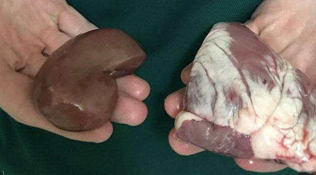The 18-year-old said the fellow student has thrown livers and offal at her. Photo: Supplied