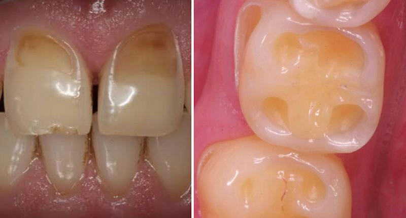 Photos illustrating teeth with signs of damage from too much kombucha shared by Sydney dentist.