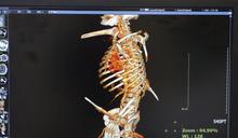 超級幸運!高處摔落2條鋼筋貫穿身體 他奇蹟存活還意外揪出肝癌