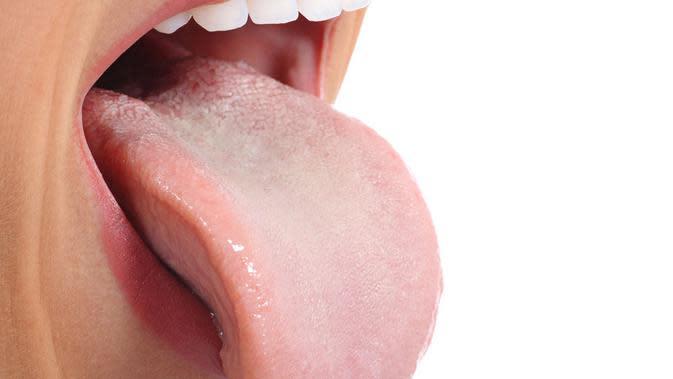 Penyebab kanker lidah secara umum