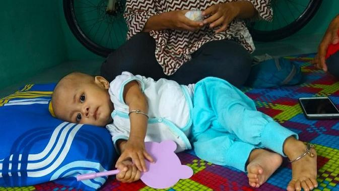 Bayi Kaina, penderita jantung bocor dirawat yang kini dirawat di Rumah Sakit Umum Daerah Arifin Ahmad Pekanbaru. (Liputan6.com/M Syukur)