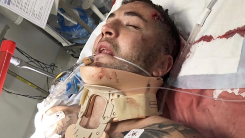 Joel Thompson, pictured in hospital after an accident on the Central Coast.
