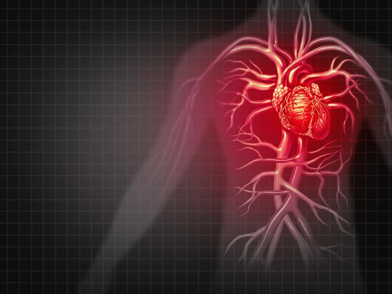 依據血管剝離的位置 可分三類