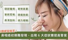 鼻咽癌初期難發現,醫:鼻塞、耳鳴等 6 種症狀要注意