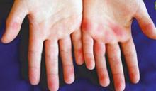 防疫生活對策/疫情宅在家狂用3C打電動也可能打出皮膚病!11種常見皮膚症狀